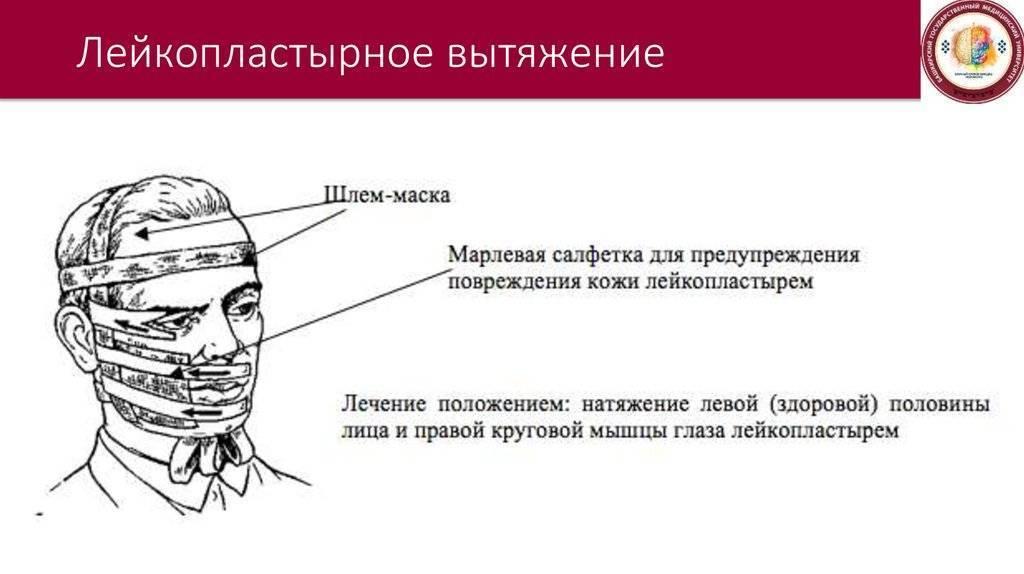 лфк при неврите лицевого нерва упражнения