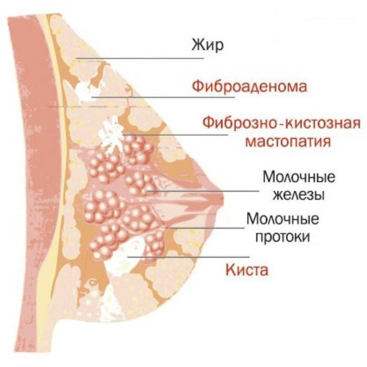 диффузно кистозная мастопатия молочных желез