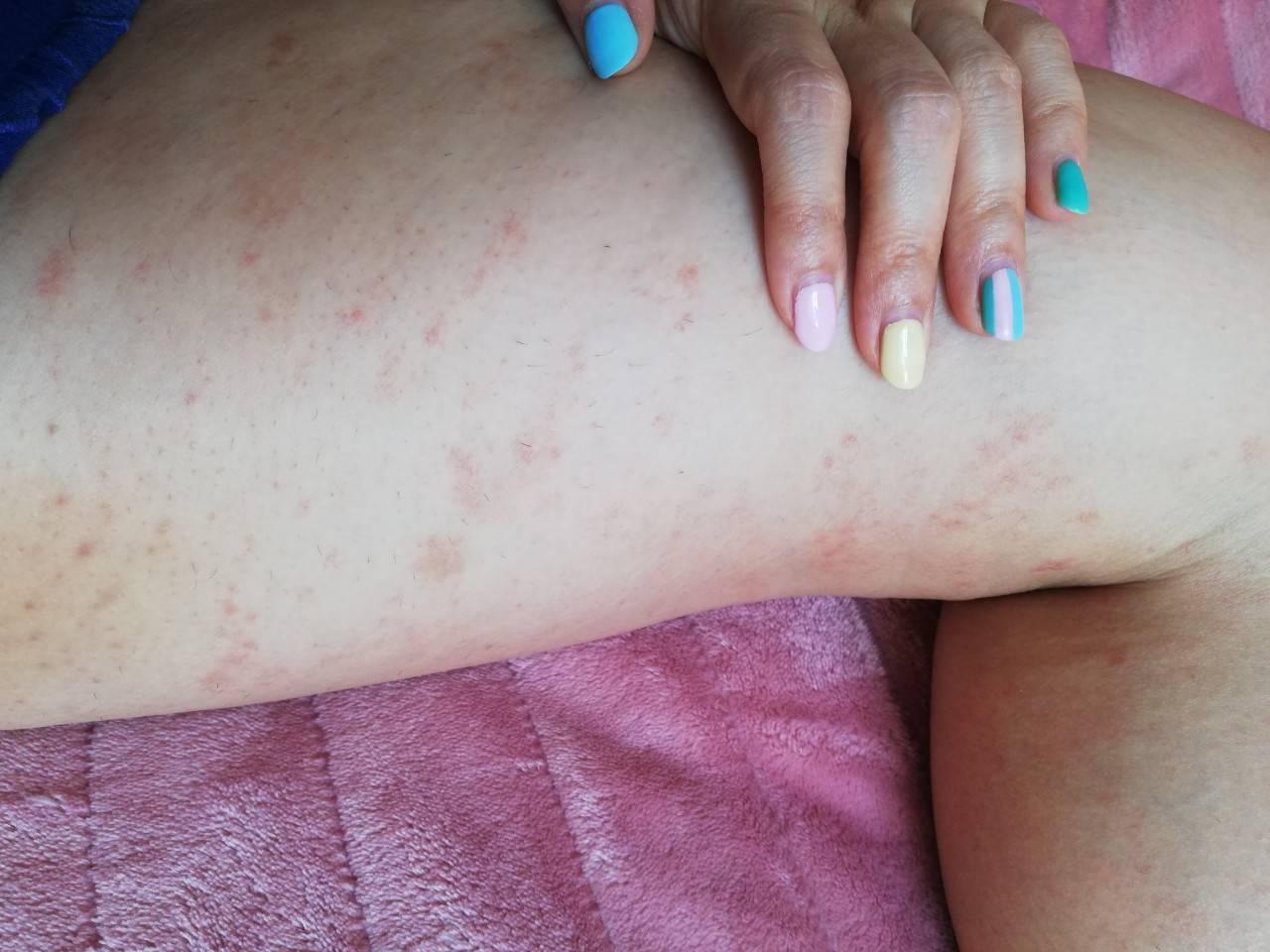 Симптомы болезни печени – признаки на лице и теле, которые должны насторожить