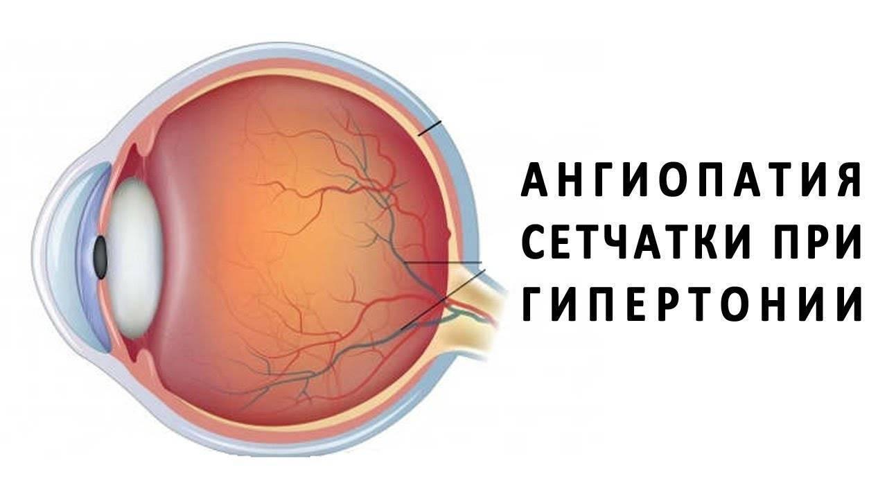 Лечение гипертонической ангиопатии сетчатки глаза
