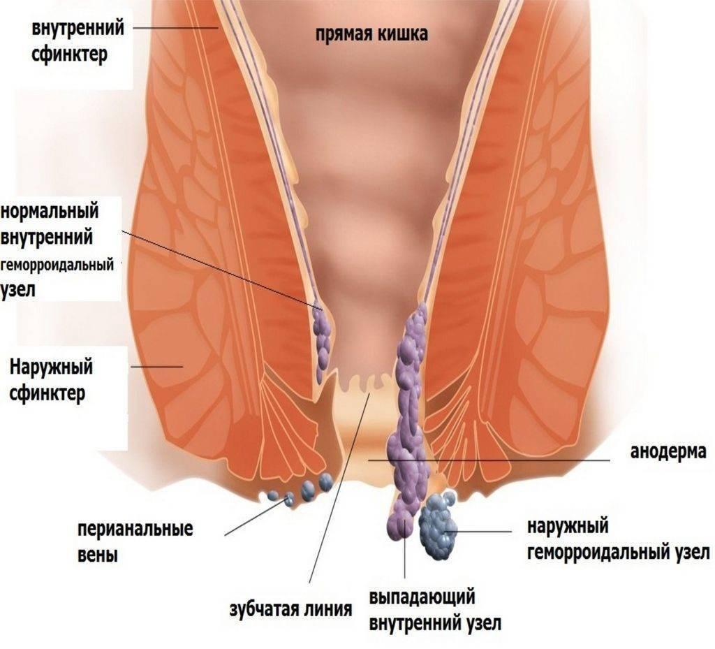 Наружный геморрой: как распознать, причины появления и методы лечения