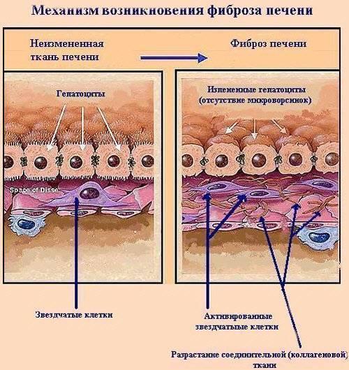 сколько живут с фиброзом печени