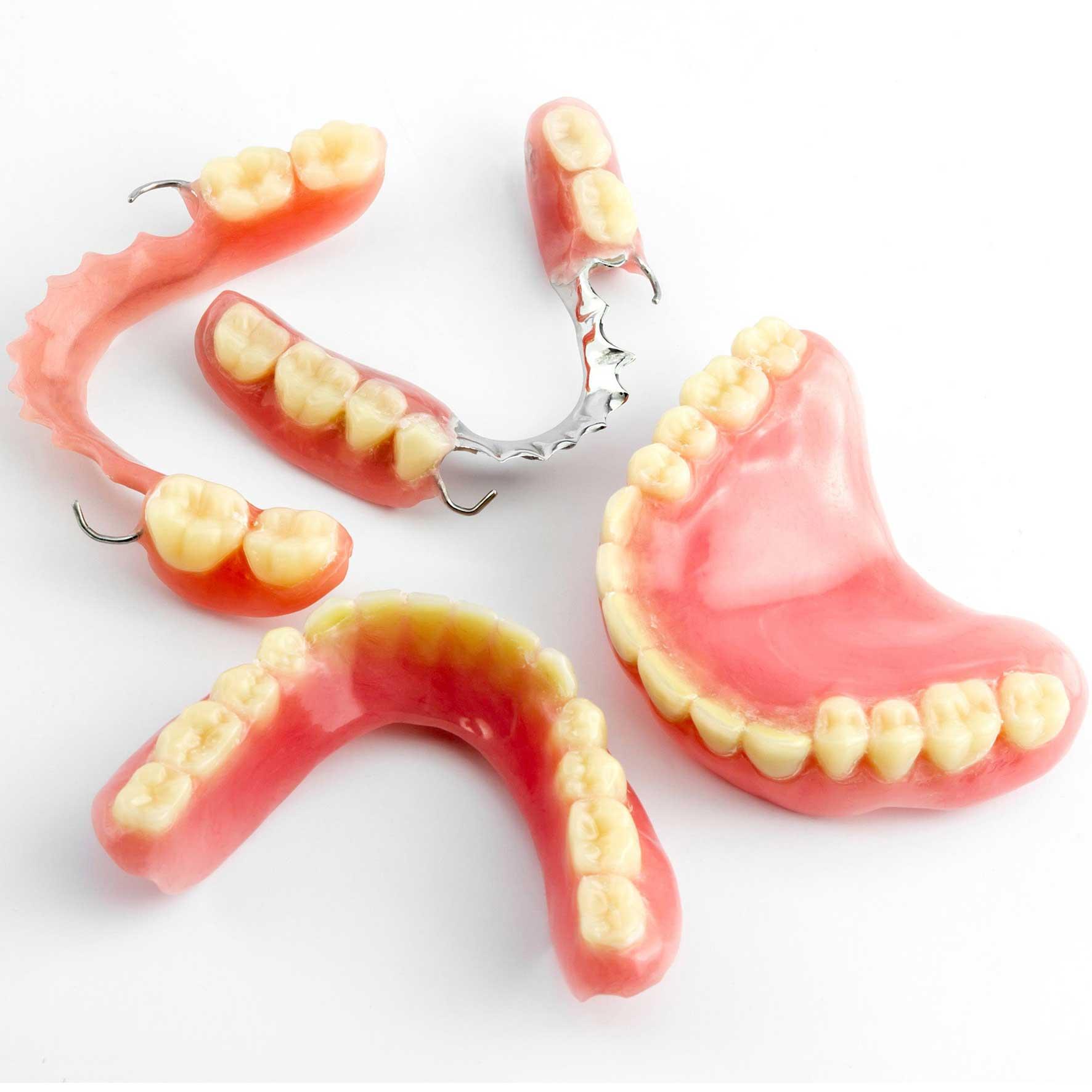 Несъемные зубные протезы: виды, цены, фото