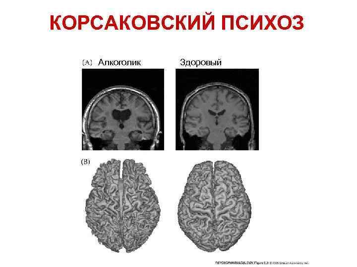 Что такое психоз корсакова, как диагностировать и вылечить