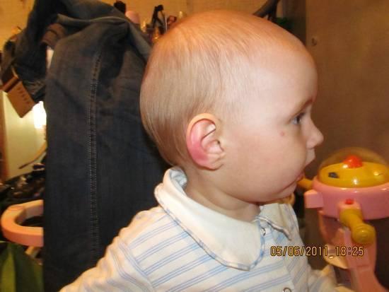 У грудничка покраснела ушная раковина. красное ухо у ребенка