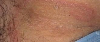 Паховый дерматит у мужчин и женщин: симптомы и лечение