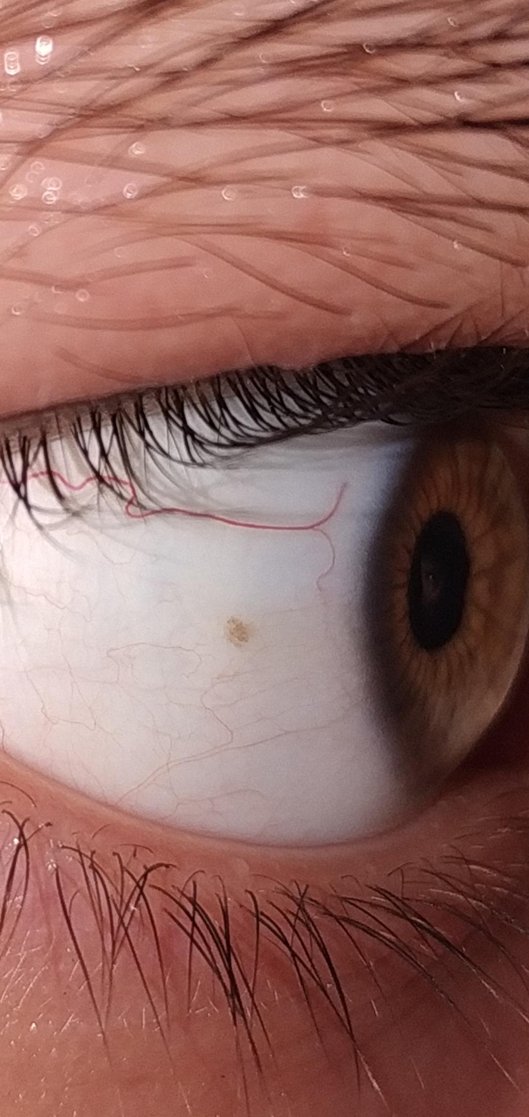 Черная точка в глазу передвигается вместе с взглядом – что это