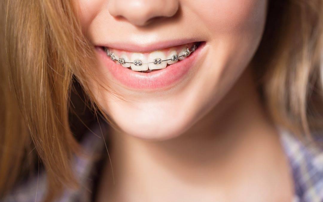 Лигатурные брекеты для создания идеальной улыбки