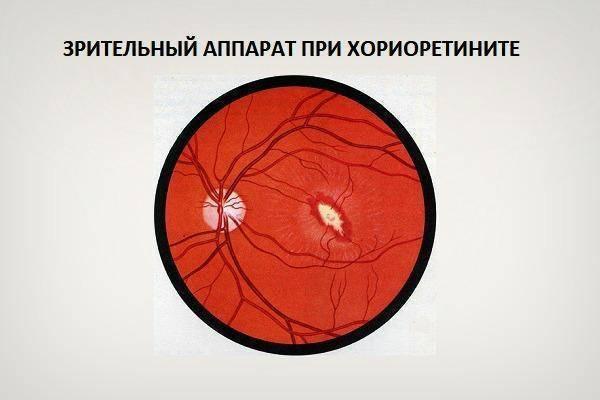 Хориоретинит: причины, симптомы, диагностика. лечение хориоретинита в москве.