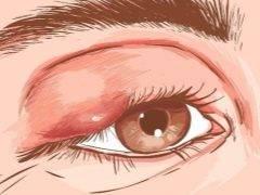 Ячмень на глазу при беременности: опасен ли, как лечить