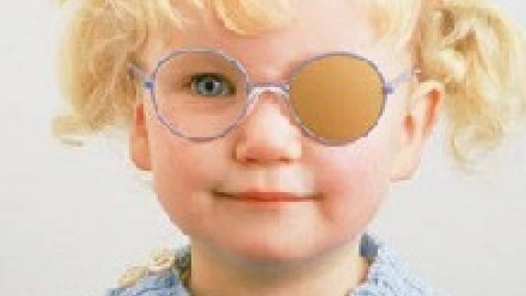 Диагноз ленивый глаз у детей: причины, лечение