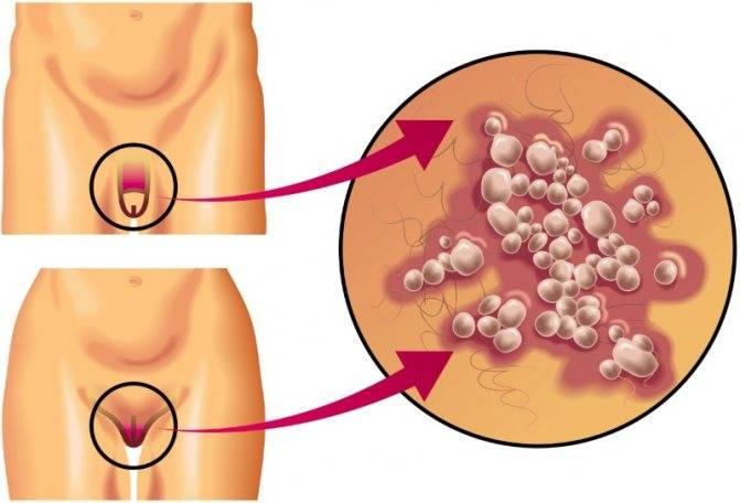 Герпес: симптомы и лечение вируса у взрослых