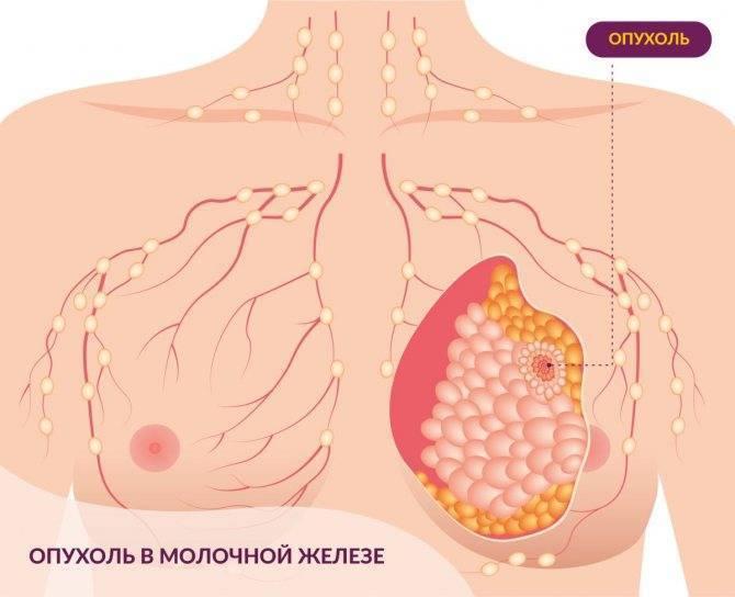 Виды опухолей молочной железы у женщин, лечение образований