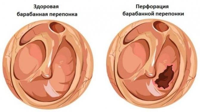 мирингит уха