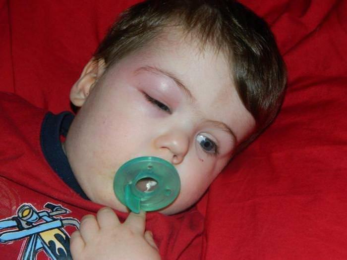 Опух глаз после укуса комара - что делать