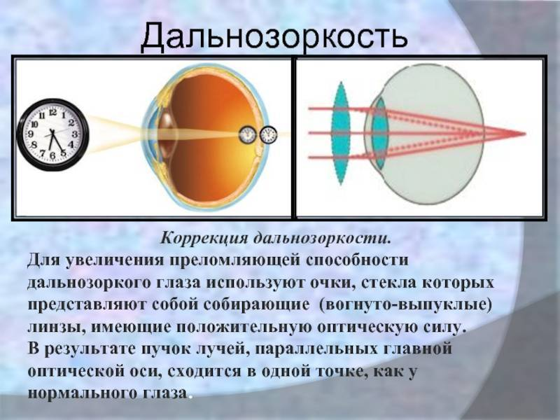 Лазерная коррекция зрения: операция и её суть, цены, клиники