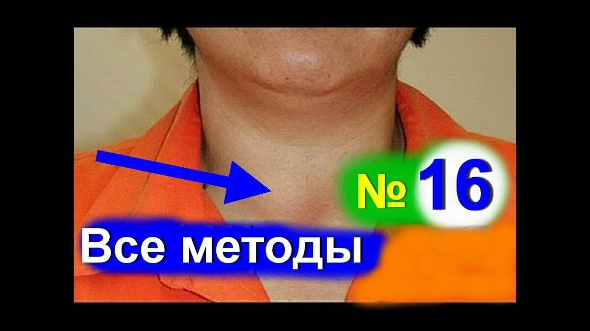 Эффективное лечение узлового зоба щитовидной железы народными средствами