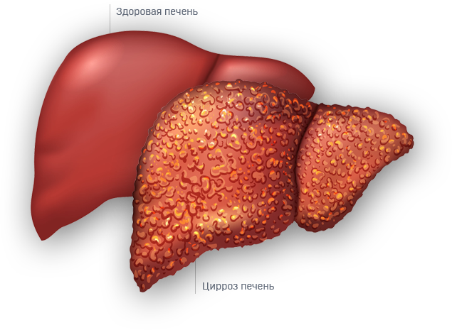 Стеатоз печени - лечение и симптомы. препараты при заболевании