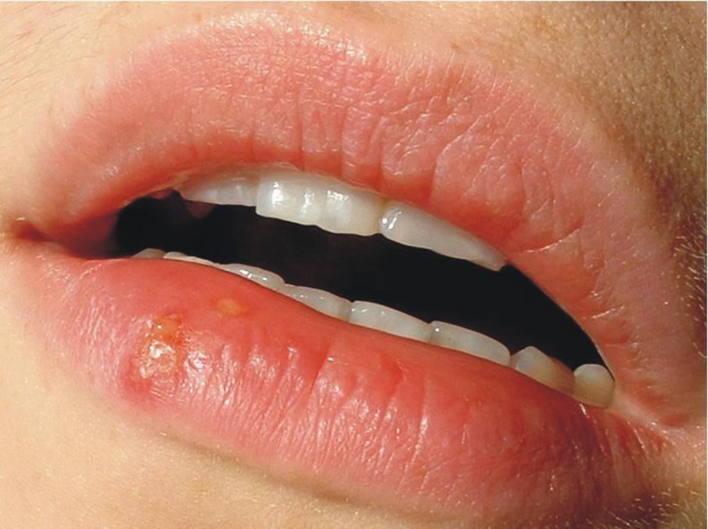 Чем лечить герпес на губе