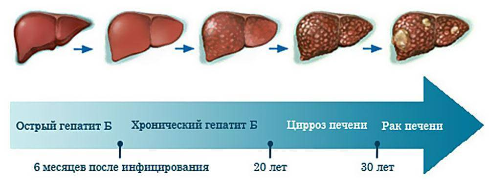 Сколько живет человек с гепатитом с