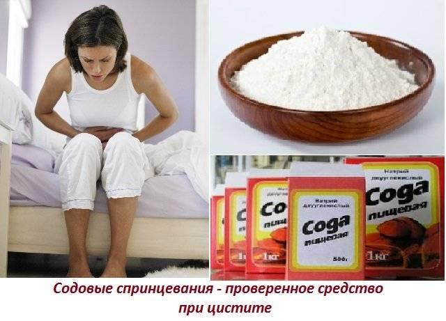 Спринцевание содой при цистите в домашних условиях