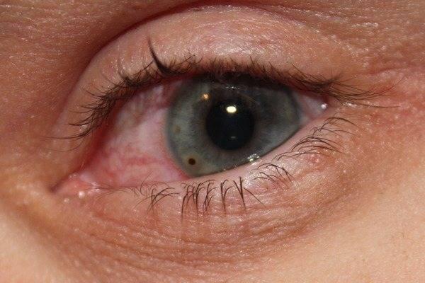 ожог глаза щелочью