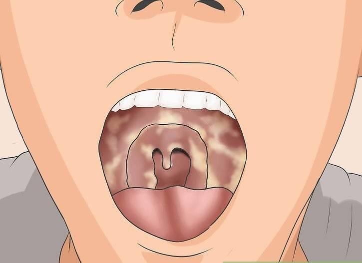 Как вылечить язвы в горле (с иллюстрациями) - wikihow