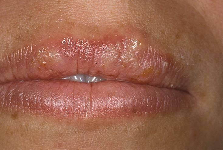 Причины и лечение герпеса на губах у детей и взрослых