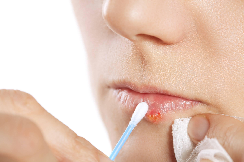 7 народных средств от герпеса: быстрое лечение в домашних условиях (на губах,на теле, генитальный, интимный, во рту)