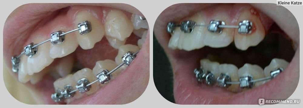 Брекеты на верхнюю челюсть: можно ли поставить только на эти зубы и сколько они болят после установки, почему ставят сначала одну