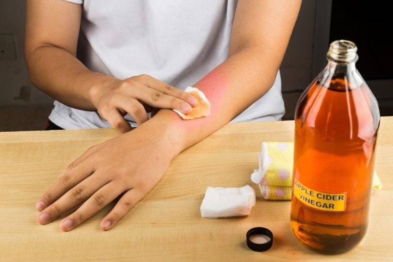 Лечение псориаза уксусом: методика, рецепты, отзывы