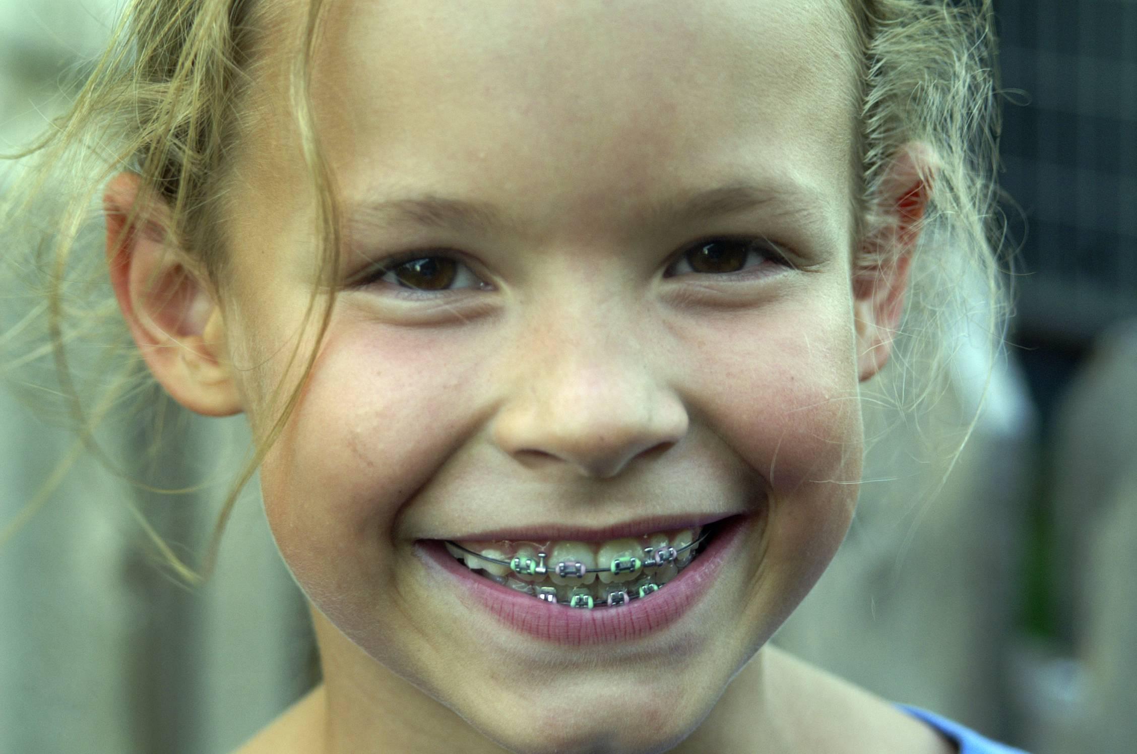 искривление зубов у детей