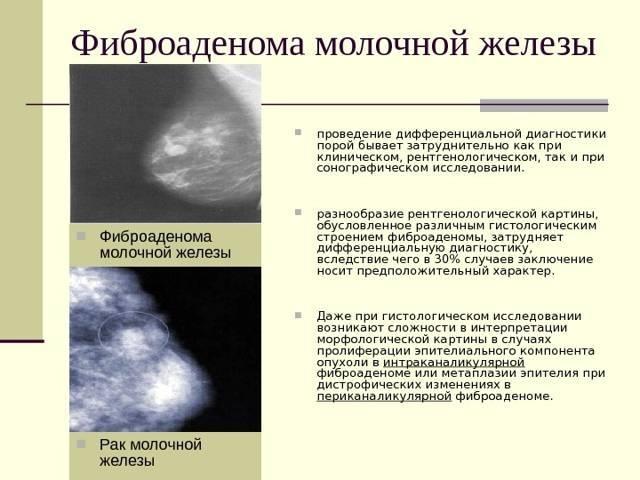 послеоперационный период после удаления фиброаденомы молочной железы