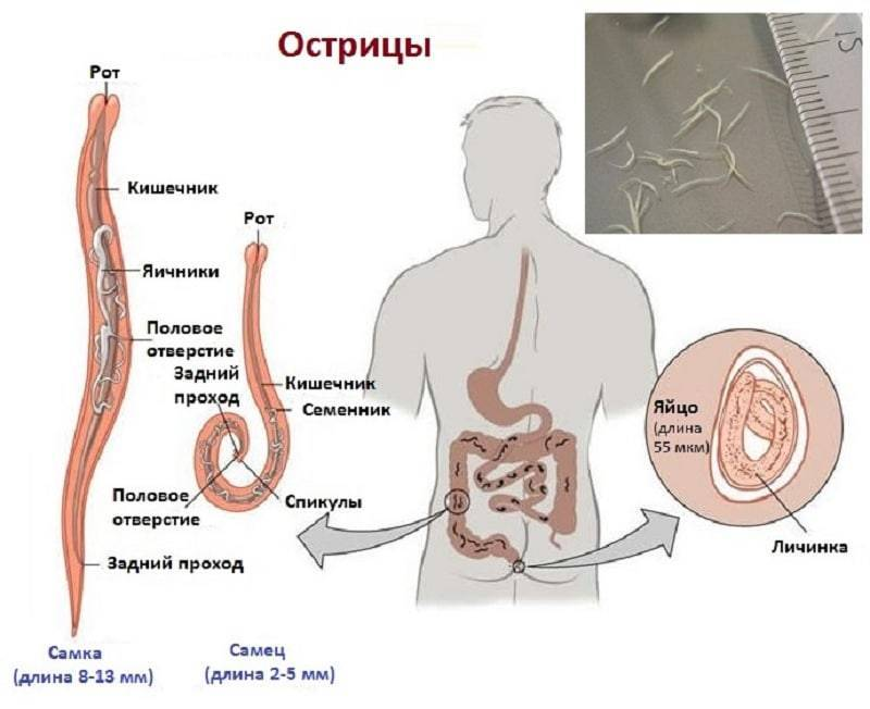 Глисты у человека: причины, симптомы, лечение
