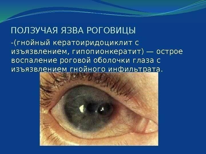 язва роговицы глаза у человека