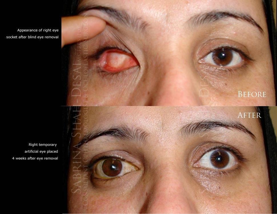 Энуклеация глаза