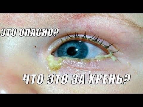 Почему глаза слипаются после бани