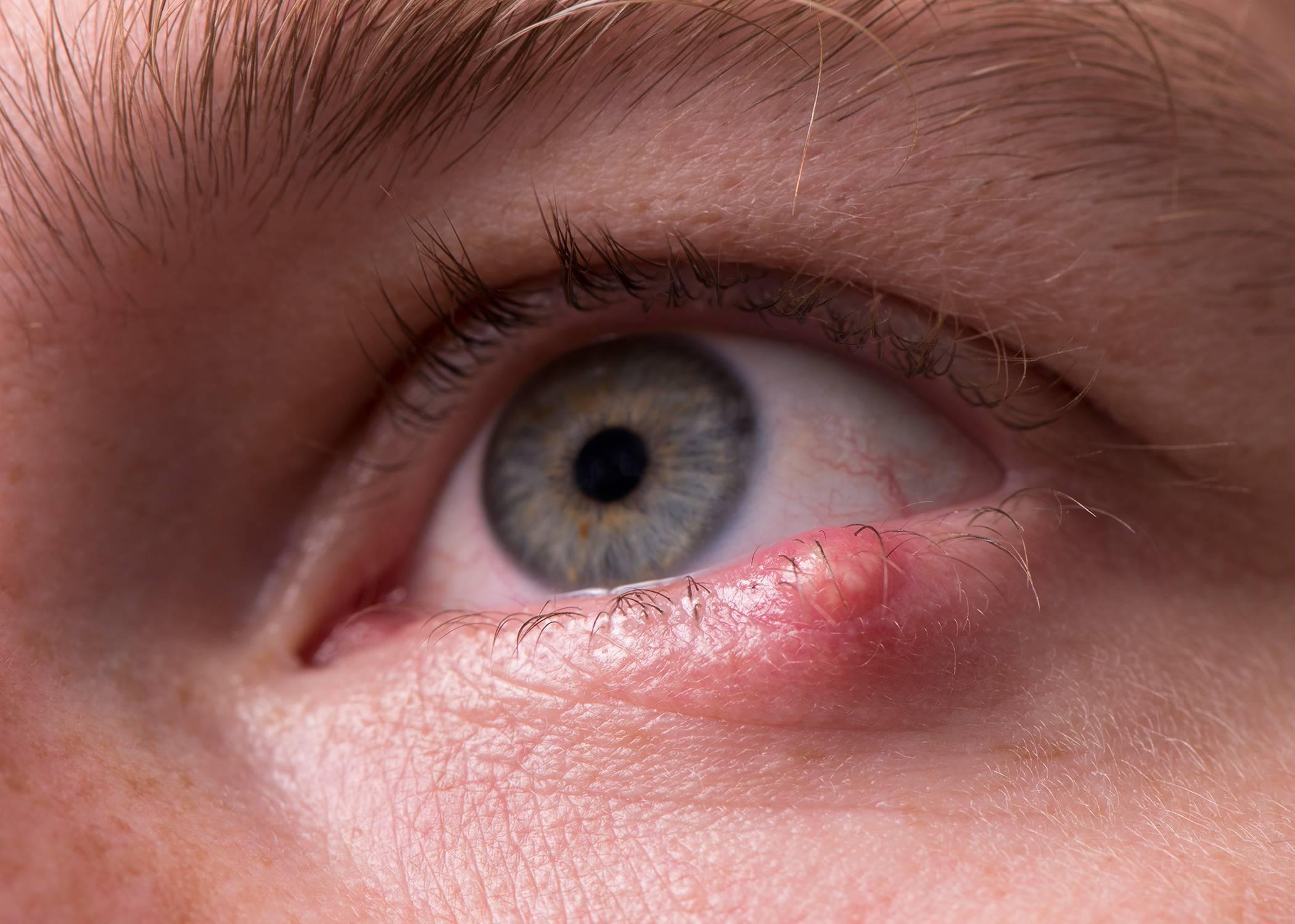 болит верхнее веко глаза внутри