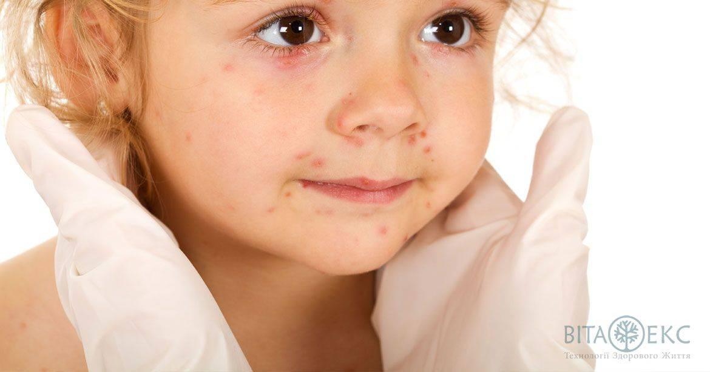 Чем можно вылечить герпесную ангину у детей?