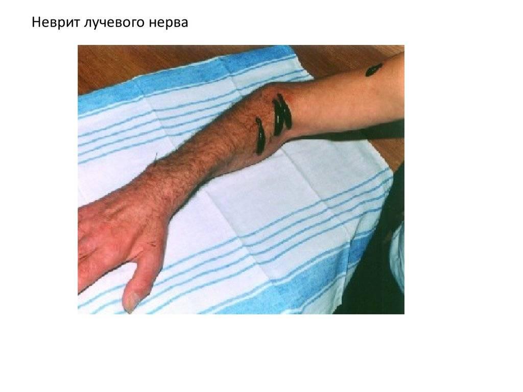 Невропатия лучевого нерва |