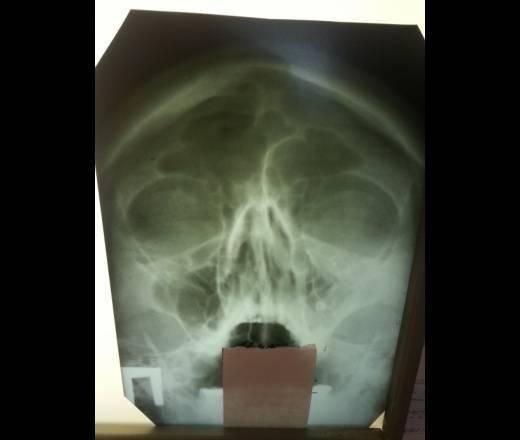 Рак полости носа и околоносовых пазух: причины, симптомы, диагностика, лечение