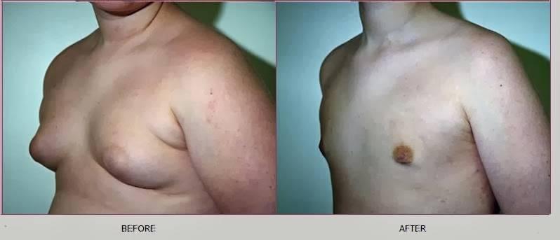 Гинекомастия – описание и фото, разновидности, причины, симптомы и признаки увеличения молочных желез у мужчин, лечение без операции. гинекомастия у женщин