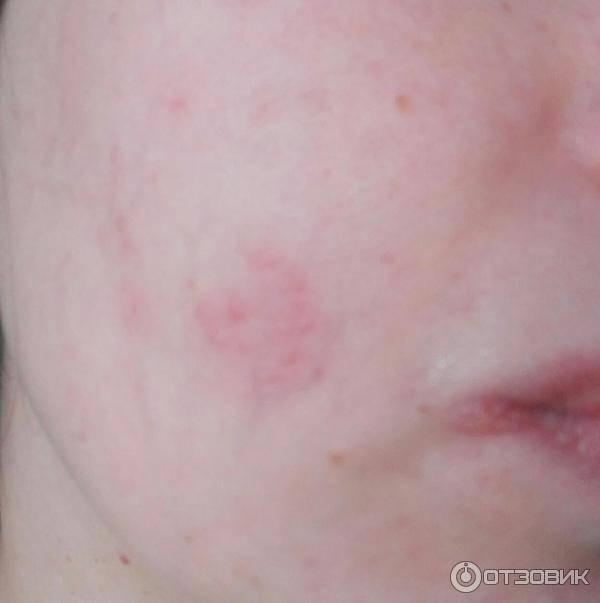 Герпес на лице фото: причины возникновения, чем и как лечить, можно ли избавиться быстро в домашних условиях?