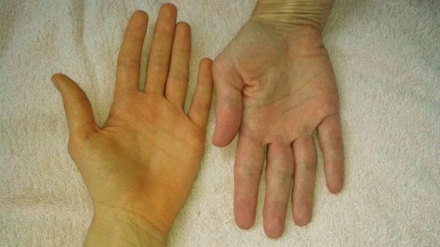 Отек ног при циррозе печени лечение