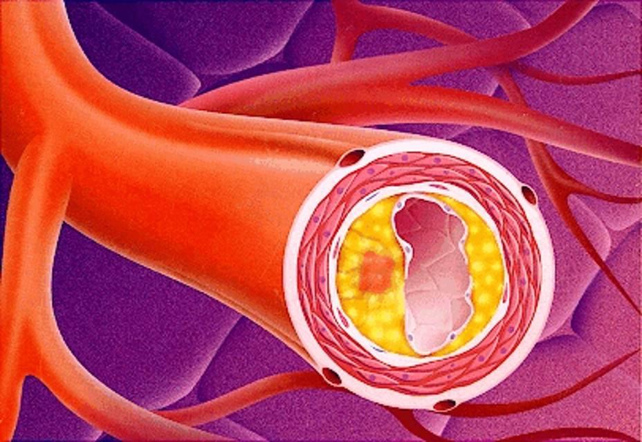 Генерализованный атеросклероз сосудов – что это такое, причина смерти, симптомы, лечение