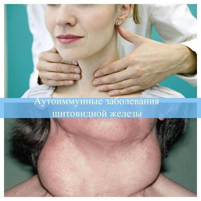 Заболевания щитовидной железы. признаки, симптомы и лечение заболеваний щитовидной железы