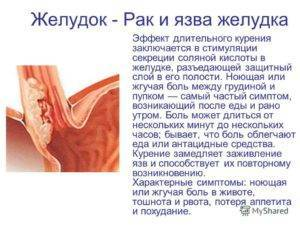 Желудочный кашель: симптомы и лечение у взрослых и детей