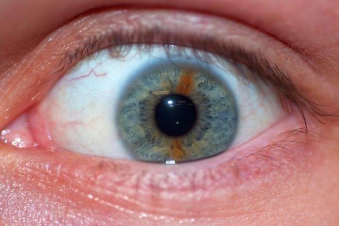 Воспаление радужки и других оболочек глаза
