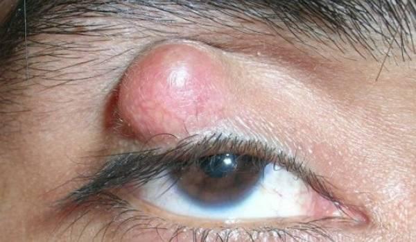 халязион на глазу как лечить у ребенка