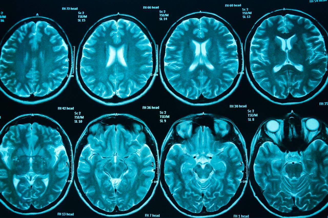 Почему возникает энцефалопатия головного мозга: провоцирующие факторы и методы терапии